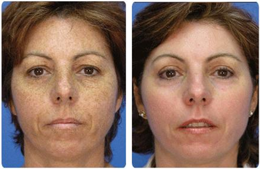 Fall Treatment Series- IPL Photofacial